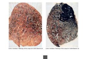 Beryllious Lungs